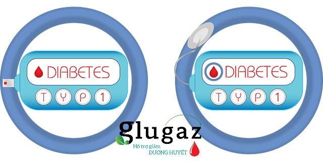 Nguyên nhân gây bệnh tiểu đường tuýp 1 là do tuyến tụy bị hư tổn